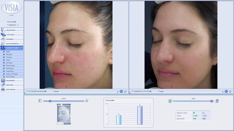 Grace | Clinicals Before and After | Skincare for inflammation, redness, oily and large pores