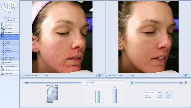 clinicals-skin-care-before-and-afters-michelle-inside-out-peel-right